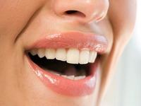 Как правильно отбелить зубы